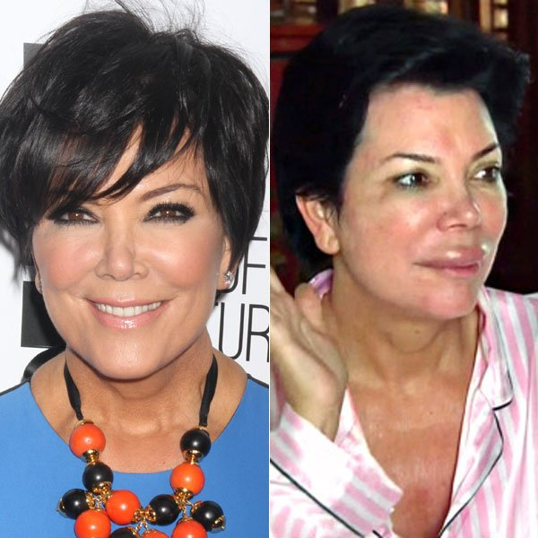 Kris Jenner's Gigantic Swollen Lips — Plastic Surgery Or Allergic Reaction?