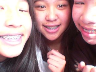 Teens wearing fake orthodontic braces. (jawgits.blogspot.ca)