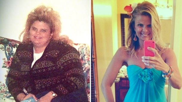 Lori Filipiak is shown before and after her dramatic weight loss