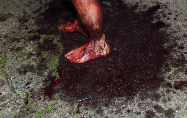 Blood-covered leg of a penitent is seen during a procession through the streets in the town of Verbicaro