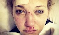 Skier Rowan Cheshire Tweets Sochi Injuries Pic