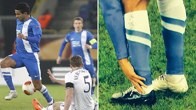 Dnipro player wears ridiculous 'one black, one white' boots
