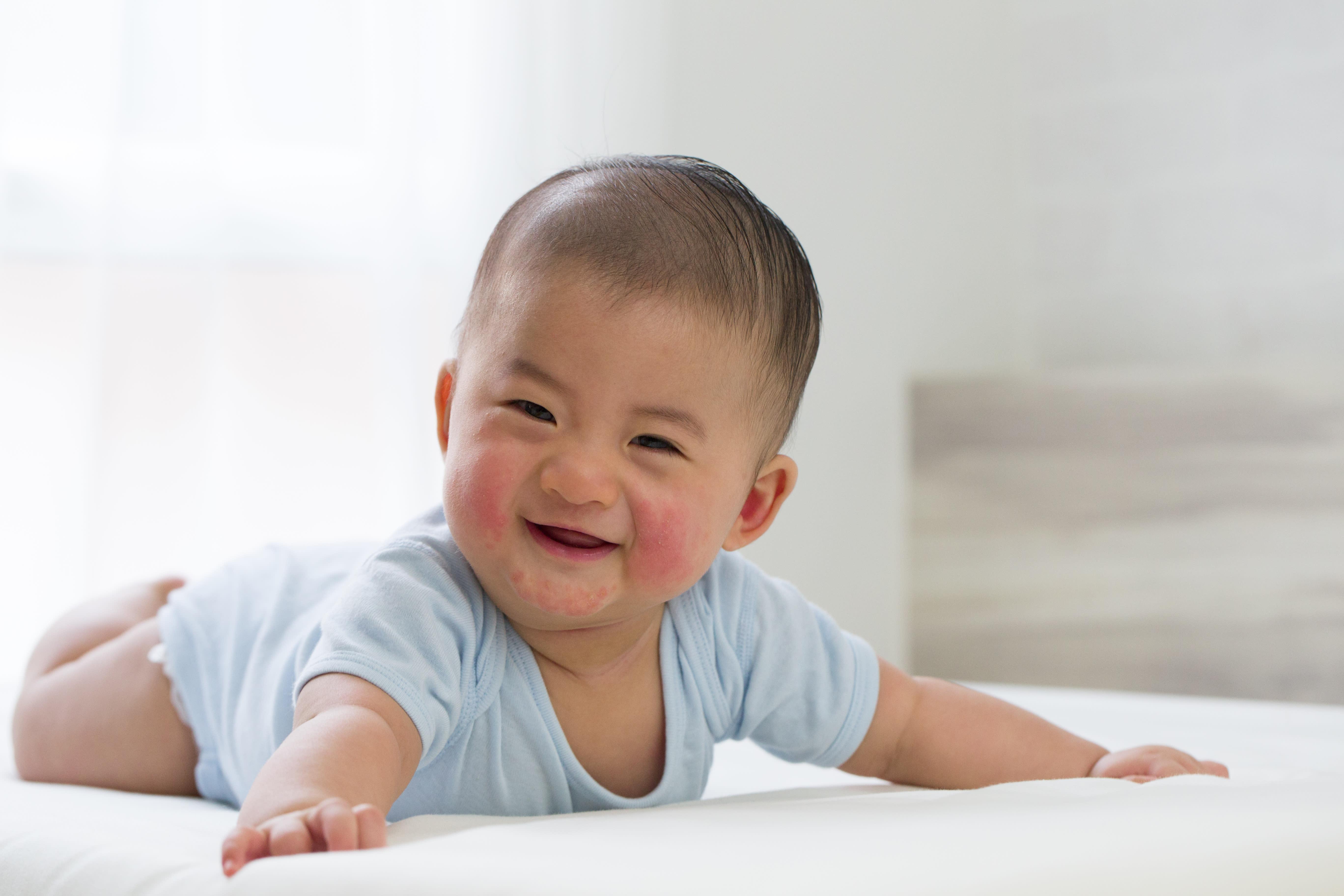 [特約民調] 過敏風險 您的寶寶中了多少?