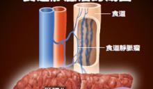 吐血小心已是肝硬化 若有蜘蛛痣肝硬化可能已經很嚴重了