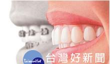 大鋼牙生活不簡單 新型牙齒矯正技術還你輕鬆與美觀