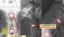 頸椎融合術後復發 人工椎間盤置換活動不受限