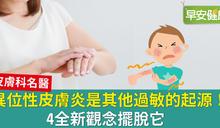 異位性皮膚炎是其他過敏的起源!4全新觀念擺脫它