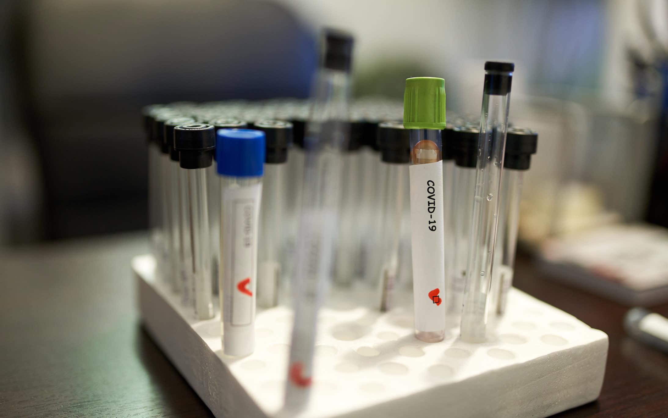 【Dr Chiu 抗疫解碼】我應該主動進行新型冠狀病毒測試嗎?