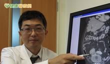 泌尿道反覆感染 恐是大腸膀胱瘻管作祟